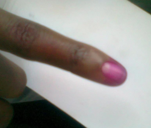 Kudzai Sevenzo's finger after voting